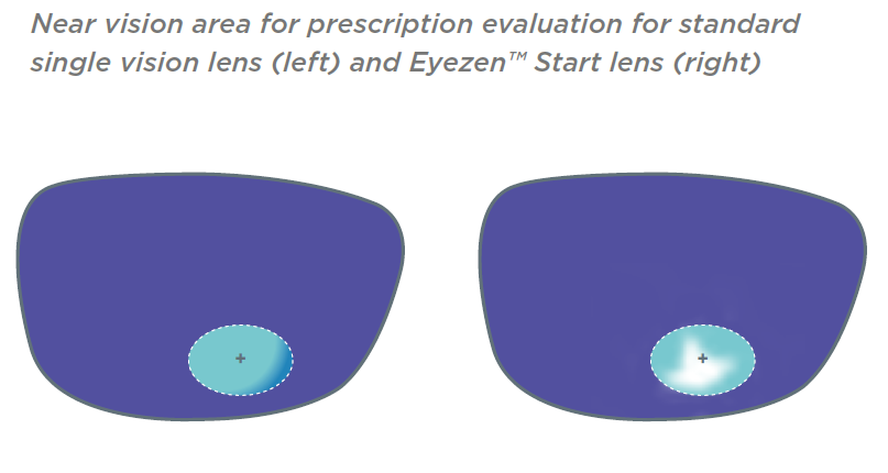 Eyezen Start Near Vision Evaluation
