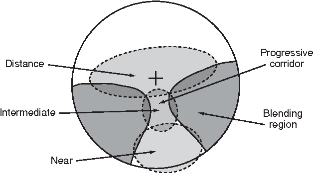 Anatomy of a progressive lens