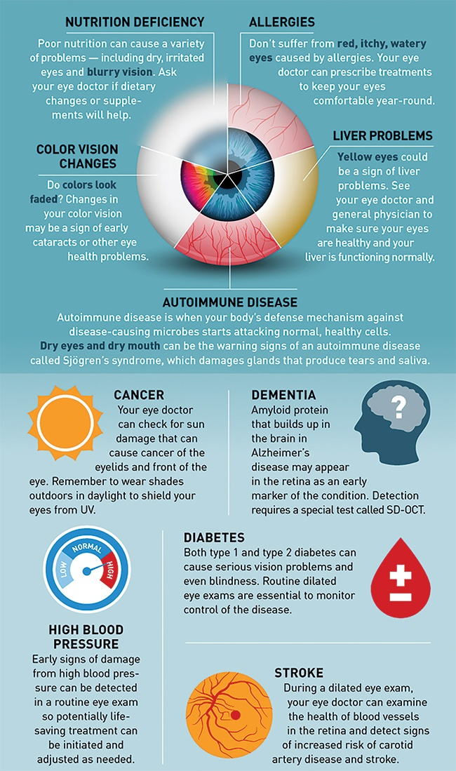 10 Health Problems Detected With Our Eyes